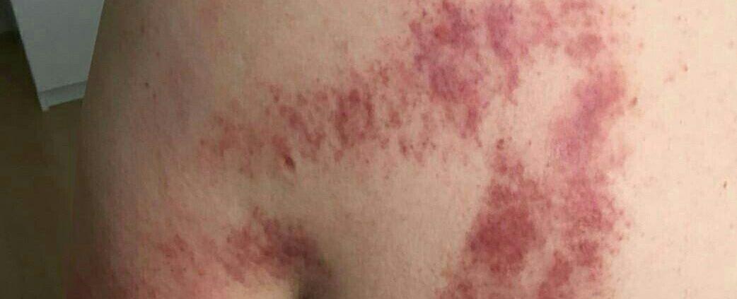 Resultaat na guasha behandeling frozen shoulder